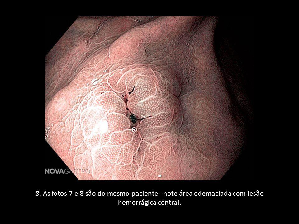 8. As fotos 7 e 8 são do mesmo paciente - note área edemaciada com lesão