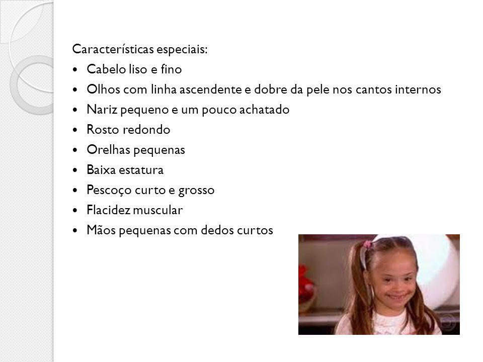 Características especiais: