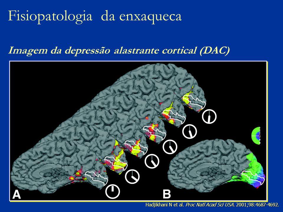 Fisiopatologia da enxaqueca Imagem da depressão alastrante cortical (DAC)