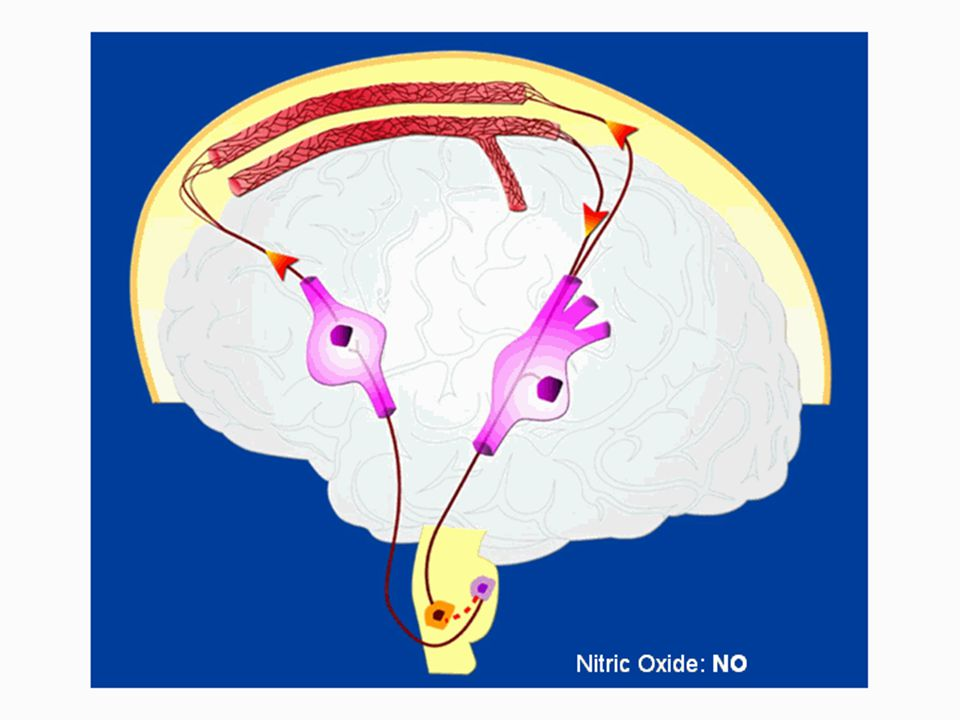 Medical research has identified two consistent features present in chronic migraine patients: an elevated sympathetic tone, and, in those patients with aura preceding the attack, a wave of cortical depression (as pictured to the right).
