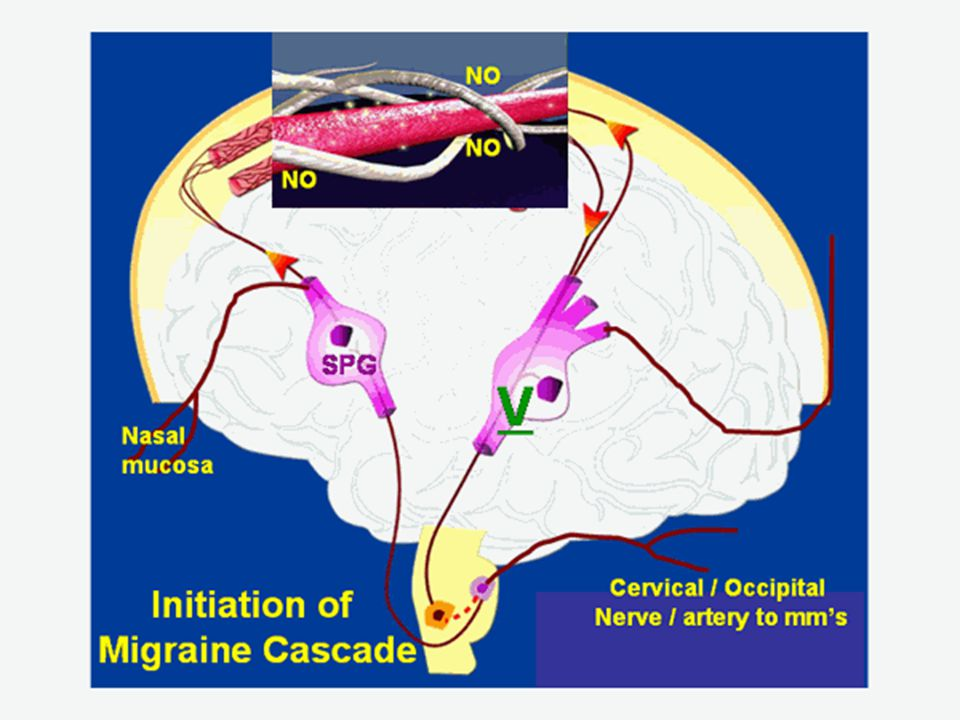 As the swelling enlargement of the intracranial surface arteries stimulates sensory fibers of V1 (ophthalmic branch of the trigeminal, V), noxious (meaning potentially harmful) information is relayed to (afferent) the sensory nucleus of the trigeminal. Then, either as a result of genetic properties of the host (as in a pre-existing elevated sympathetic tone), or as a result of a pre-sensitization of the sensory nucleus (addressed further below), or both, Calcitonin Gene-Related Peptide (CGRP) is secreted by the nerve endings of V1 (as are other noxious chemicals), thereby producing a frank inflammation of the arteries, which is thought to be primarily responsible for the patient s pain, throbbing and aversion to movement.