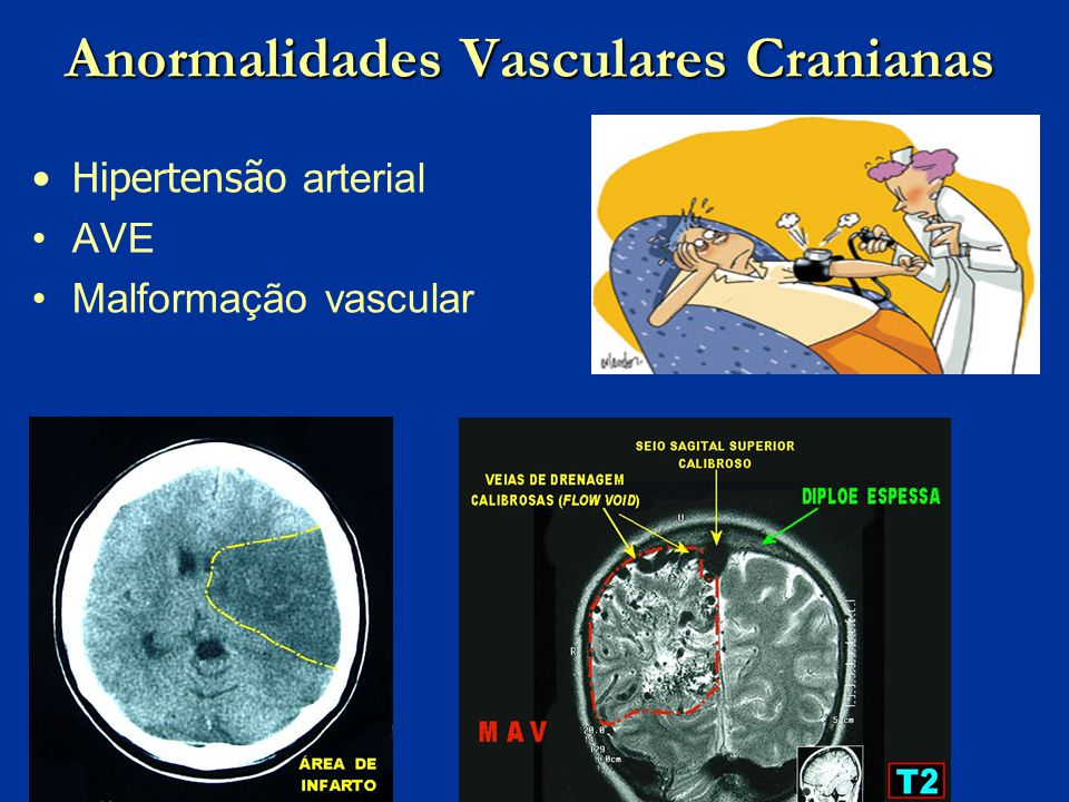 Anormalidades Vasculares Cranianas