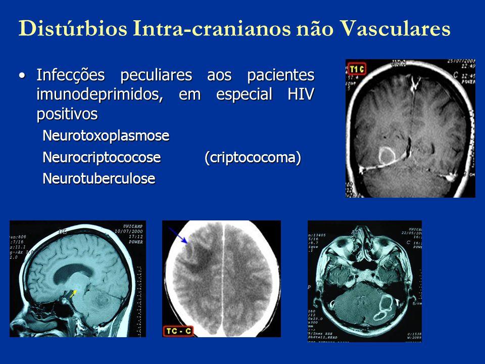 Distúrbios Intra-cranianos não Vasculares