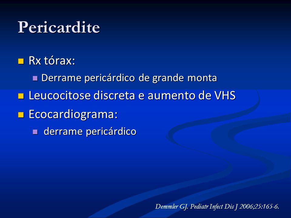 Pericardite Rx tórax: Leucocitose discreta e aumento de VHS