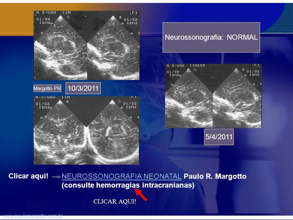 Neurossonografia: NORMAL