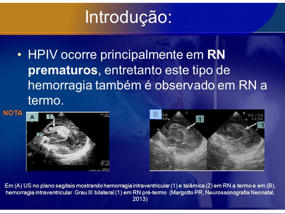 Introdução: HPIV ocorre principalmente em RN prematuros, entretanto este tipo de hemorragia também é observado em RN a termo.