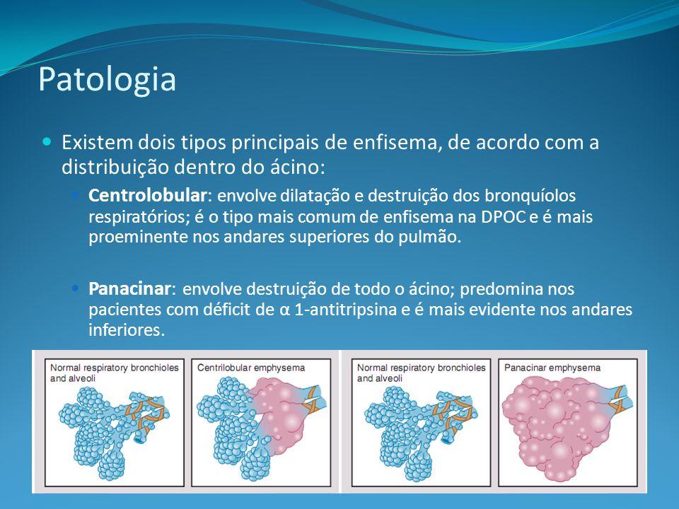 Patologia Existem dois tipos principais de enfisema, de acordo com a distribuição dentro do ácino: