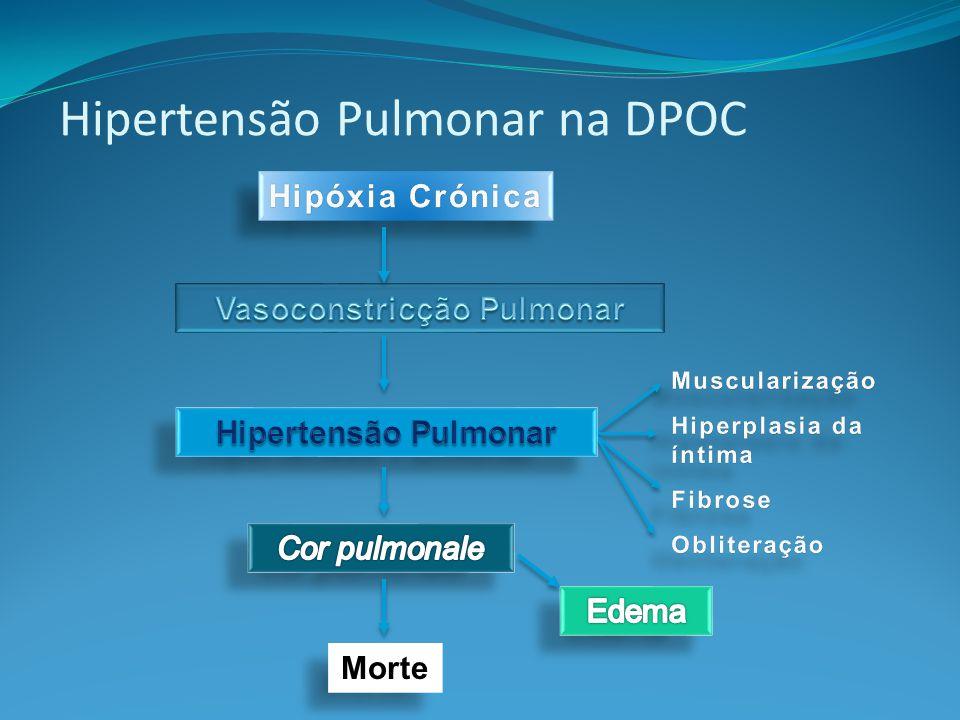 Vasoconstricção Pulmonar