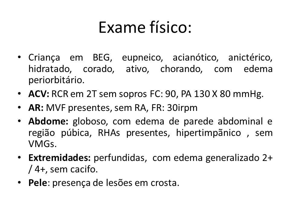 Exame físico: Criança em BEG, eupneico, acianótico, anictérico, hidratado, corado, ativo, chorando, com edema periorbitário.