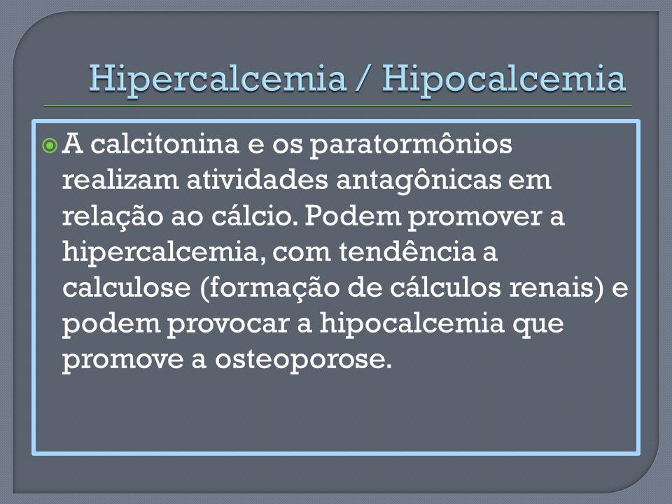 Hipercalcemia / Hipocalcemia