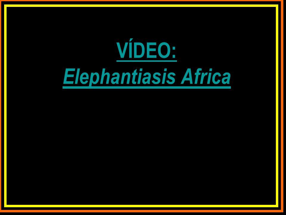 VÍDEO: Elephantiasis Africa