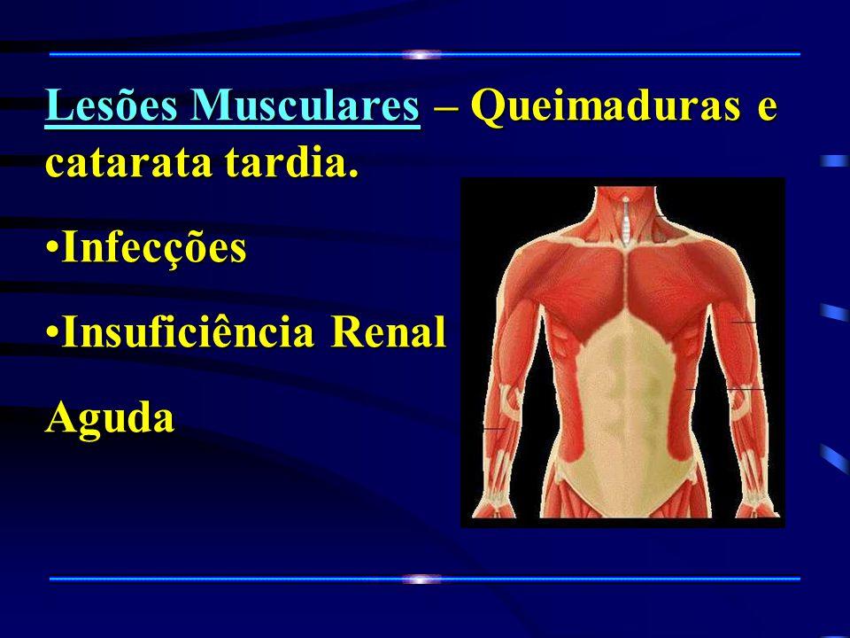 Lesões Musculares – Queimaduras e catarata tardia.