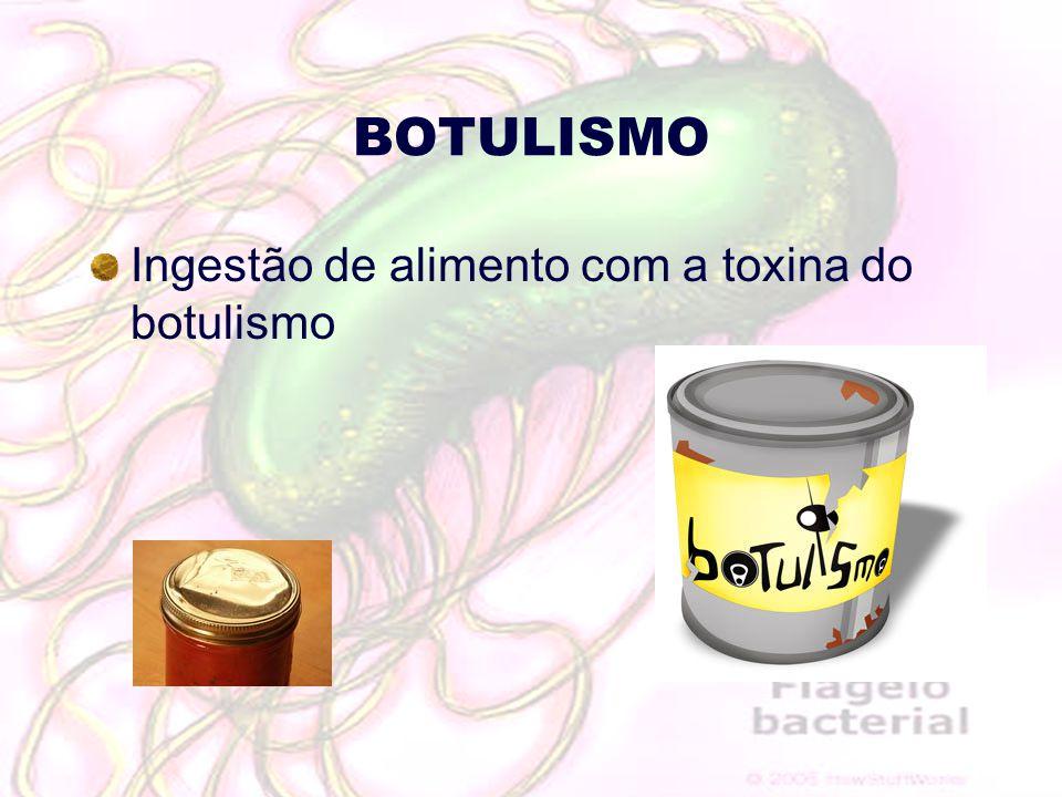 BOTULISMO Ingestão de alimento com a toxina do botulismo