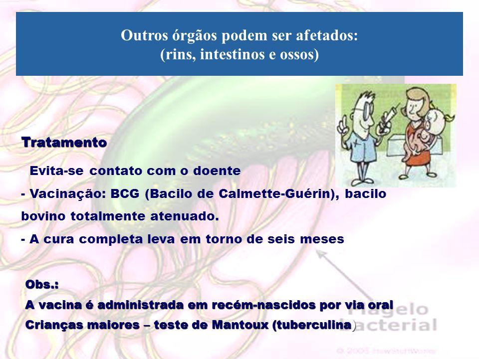 Outros órgãos podem ser afetados: (rins, intestinos e ossos)