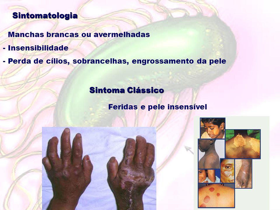 Sintomatologia Sintoma Clássico