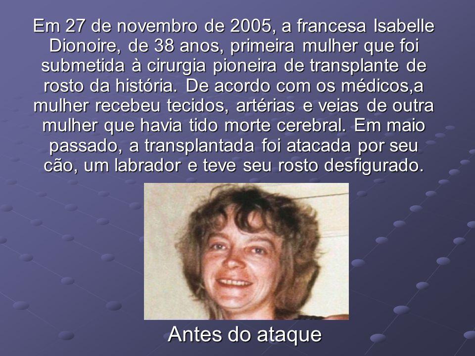 Em 27 de novembro de 2005, a francesa Isabelle Dionoire, de 38 anos, primeira mulher que foi submetida à cirurgia pioneira de transplante de rosto da história. De acordo com os médicos,a mulher recebeu tecidos, artérias e veias de outra mulher que havia tido morte cerebral. Em maio passado, a transplantada foi atacada por seu cão, um labrador e teve seu rosto desfigurado.