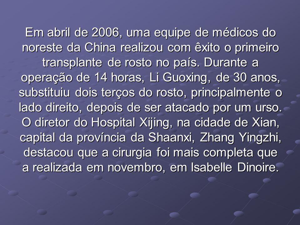 Em abril de 2006, uma equipe de médicos do noreste da China realizou com êxito o primeiro transplante de rosto no país.