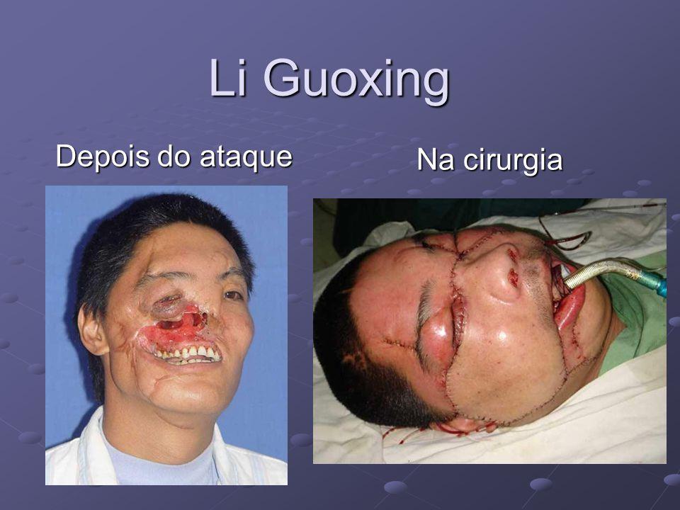 Li Guoxing Depois do ataque Na cirurgia