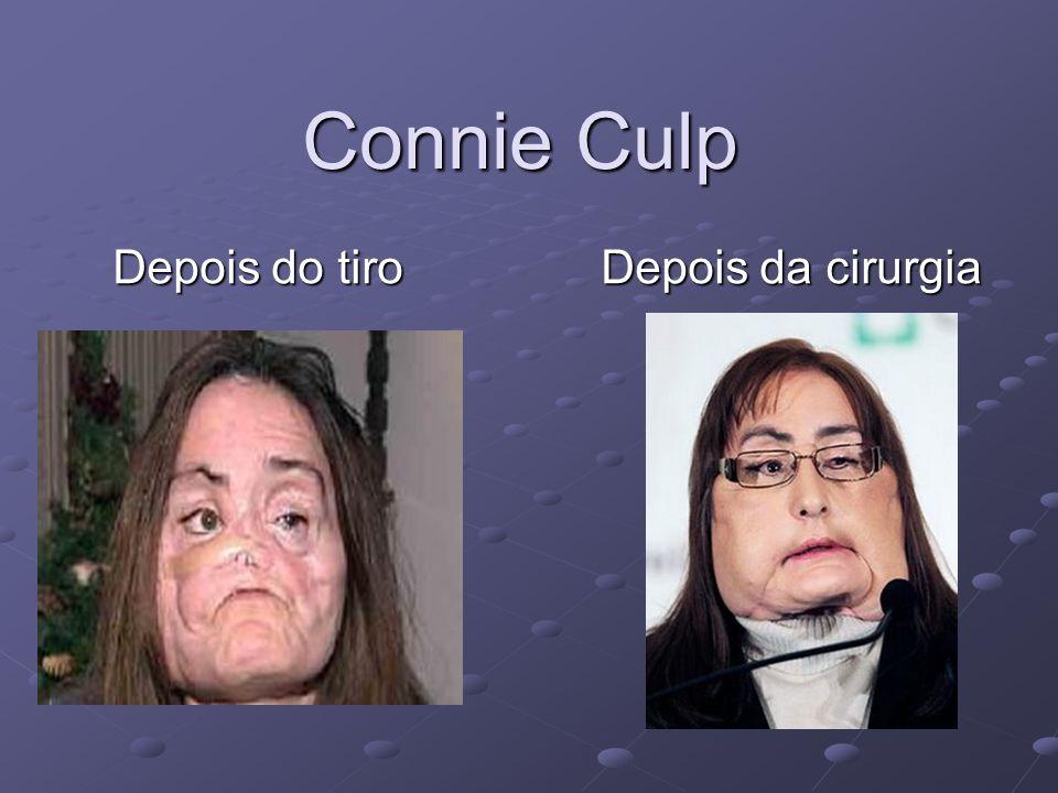 Connie Culp Depois do tiro Depois da cirurgia