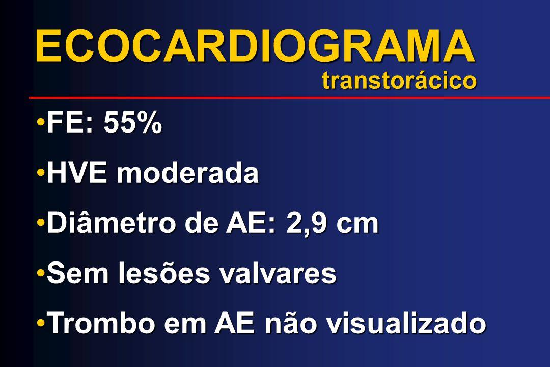 ECOCARDIOGRAMA FE: 55% HVE moderada Diâmetro de AE: 2,9 cm