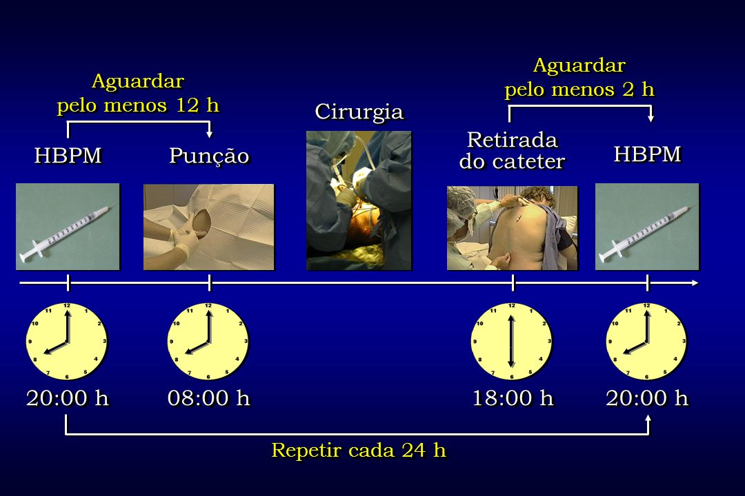 Cirurgia Retirada do cateter HBPM Punção HBPM 20:00 h 08:00 h 18:00 h