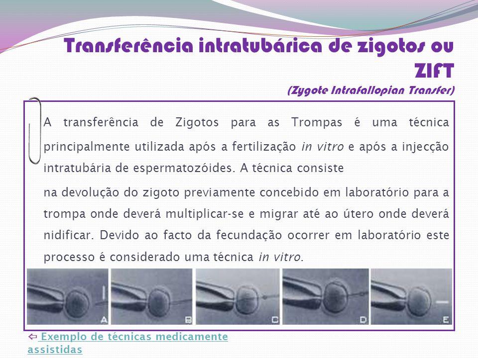 Transferência intratubárica de zigotos ou ZIFT (Zygote Intrafallopian Transfer)