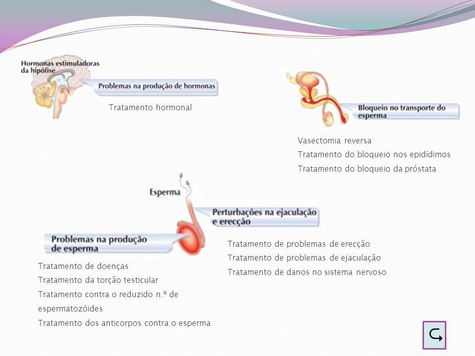  Tratamento hormonal Vasectomia reversa