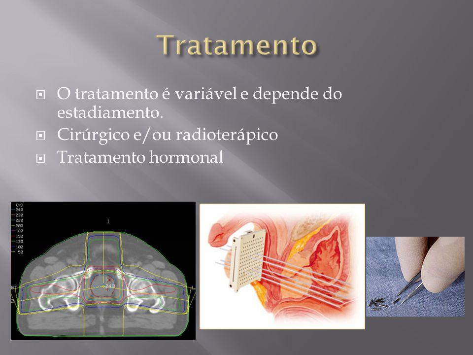 Tratamento O tratamento é variável e depende do estadiamento.