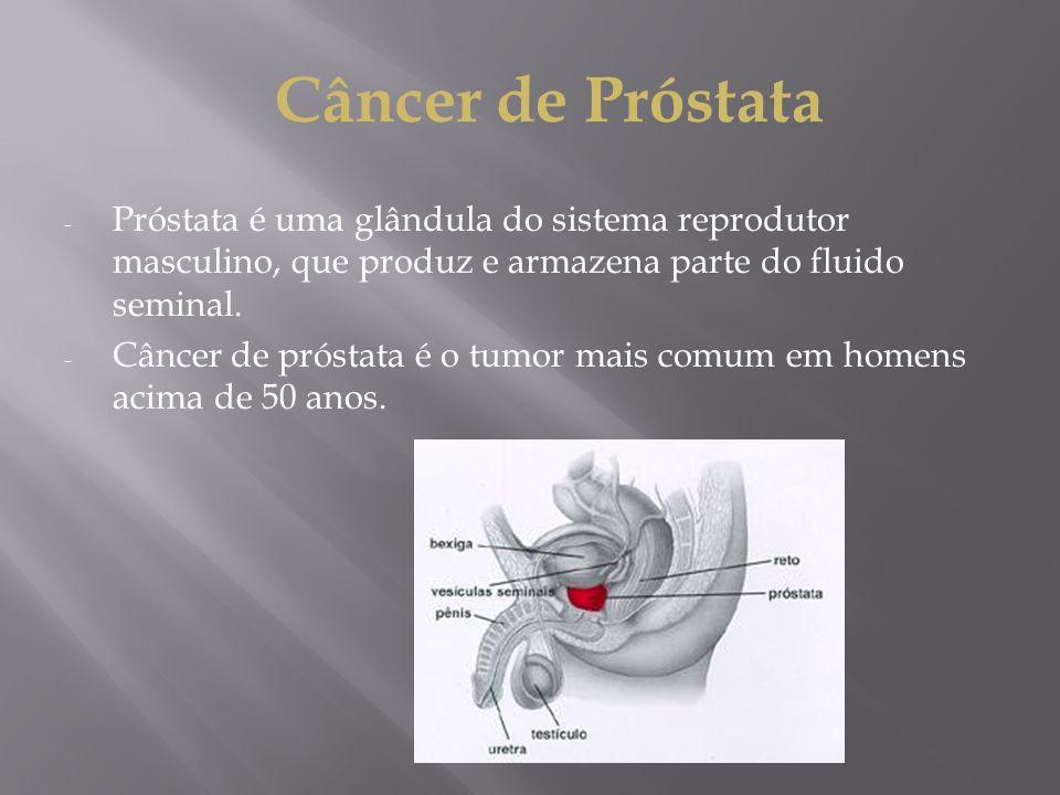 Câncer de Próstata Próstata é uma glândula do sistema reprodutor masculino, que produz e armazena parte do fluido seminal.