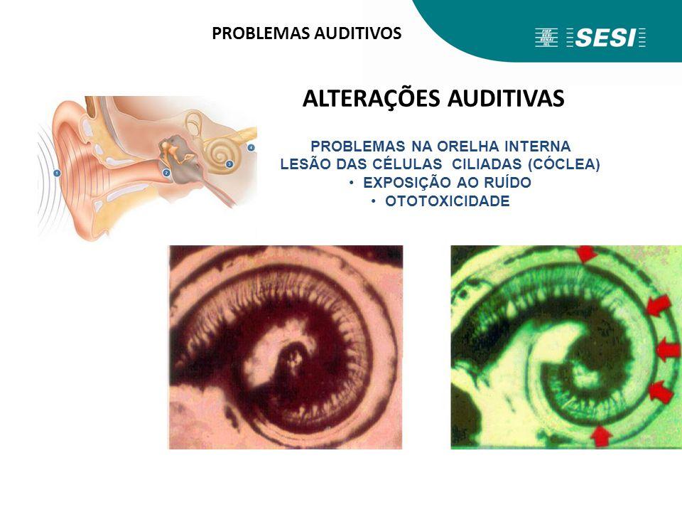 PROBLEMAS NA ORELHA INTERNA LESÃO DAS CÉLULAS CILIADAS (CÓCLEA)