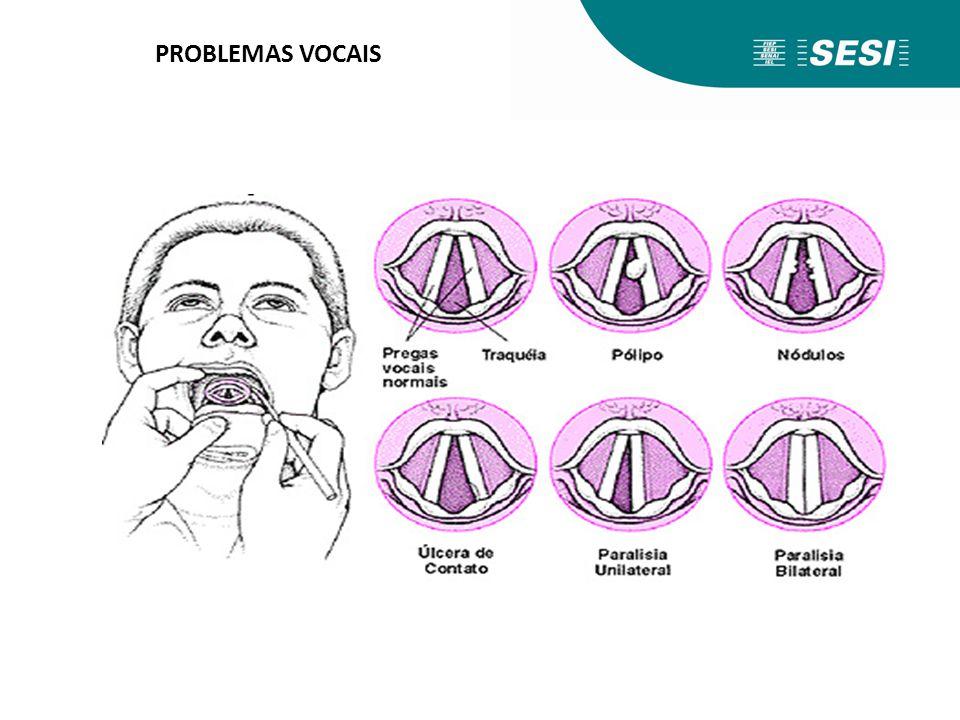 PROBLEMAS VOCAIS Comparação de uma prega vocal normal e com alteração orgânica.