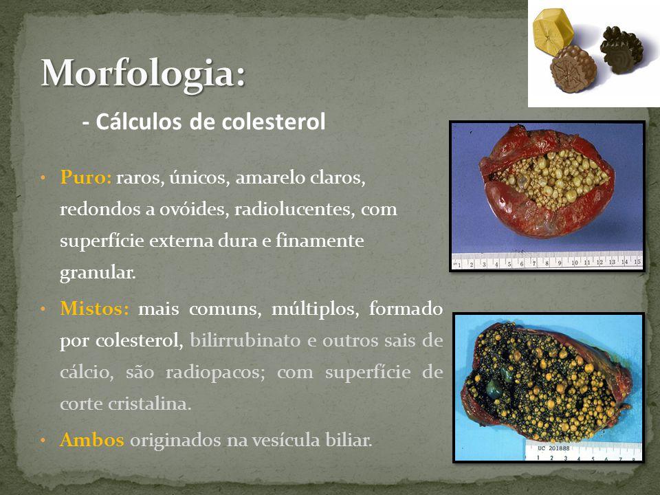Morfologia: - Cálculos de colesterol