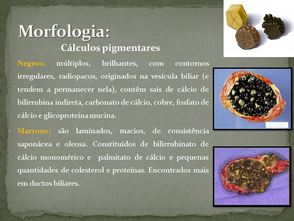 Morfologia: Cálculos pigmentares