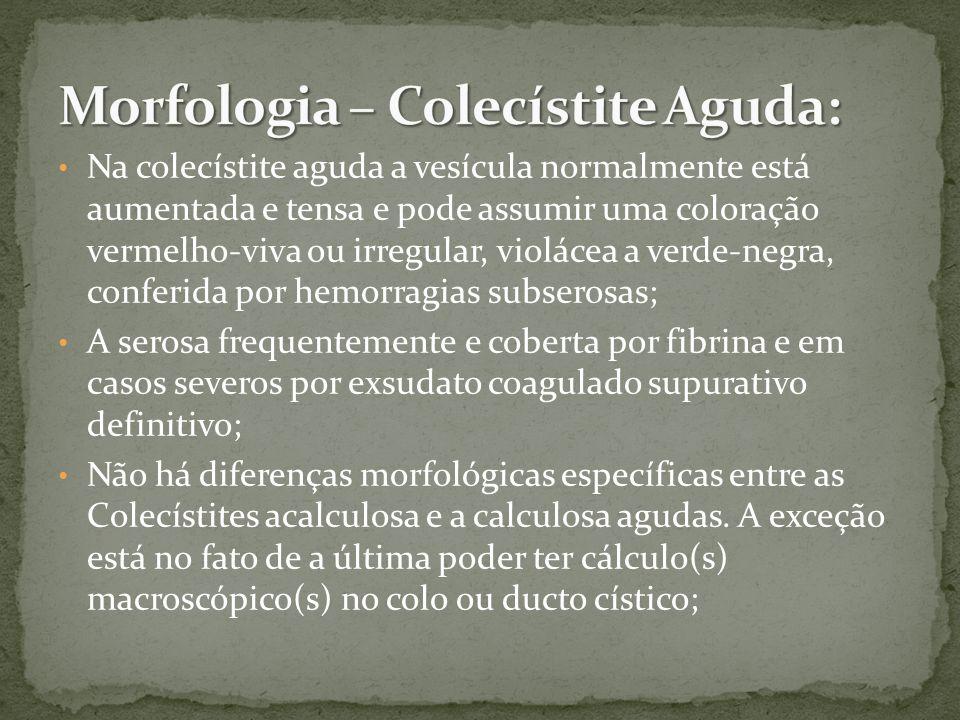 Morfologia – Colecístite Aguda:
