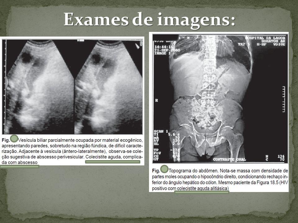 Exames de imagens: