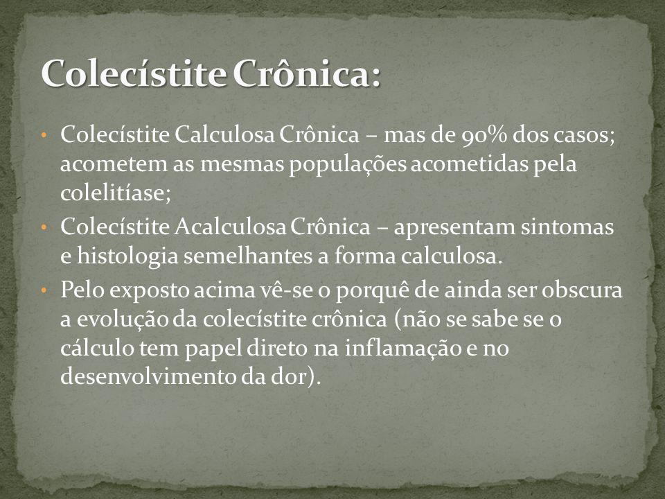 Colecístite Crônica: Colecístite Calculosa Crônica – mas de 90% dos casos; acometem as mesmas populações acometidas pela colelitíase;