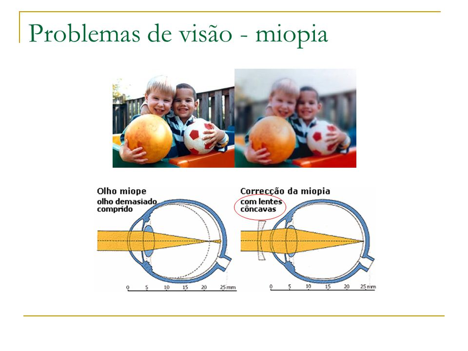 Problemas de visão - miopia