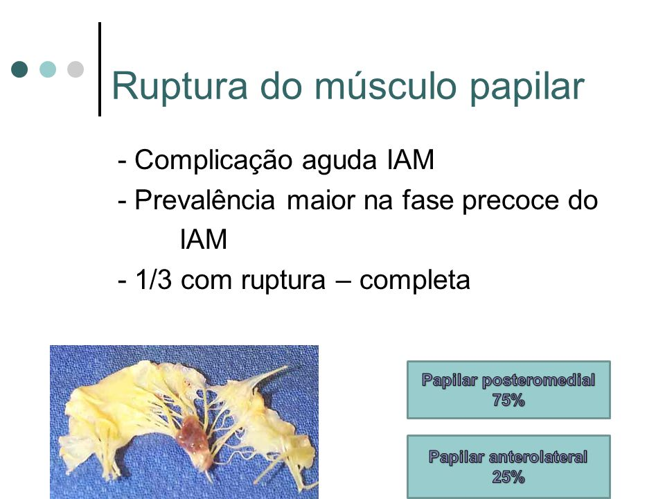 Ruptura do músculo papilar