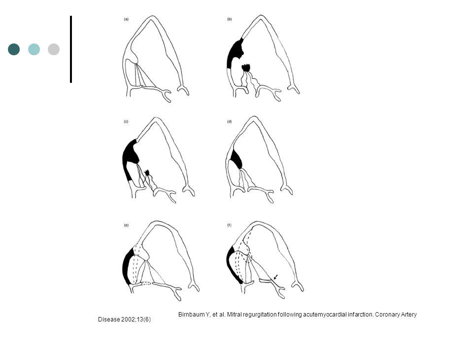 Birnbaum Y, et al. Mitral regurgitation following acutemyocardial infarction.
