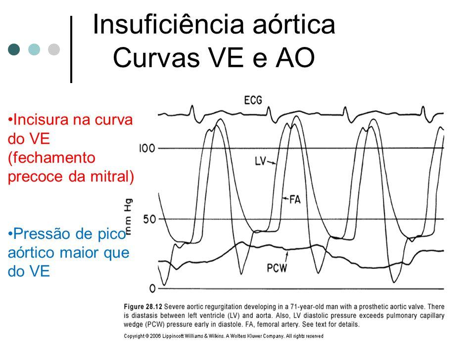 Insuficiência aórtica Curvas VE e AO