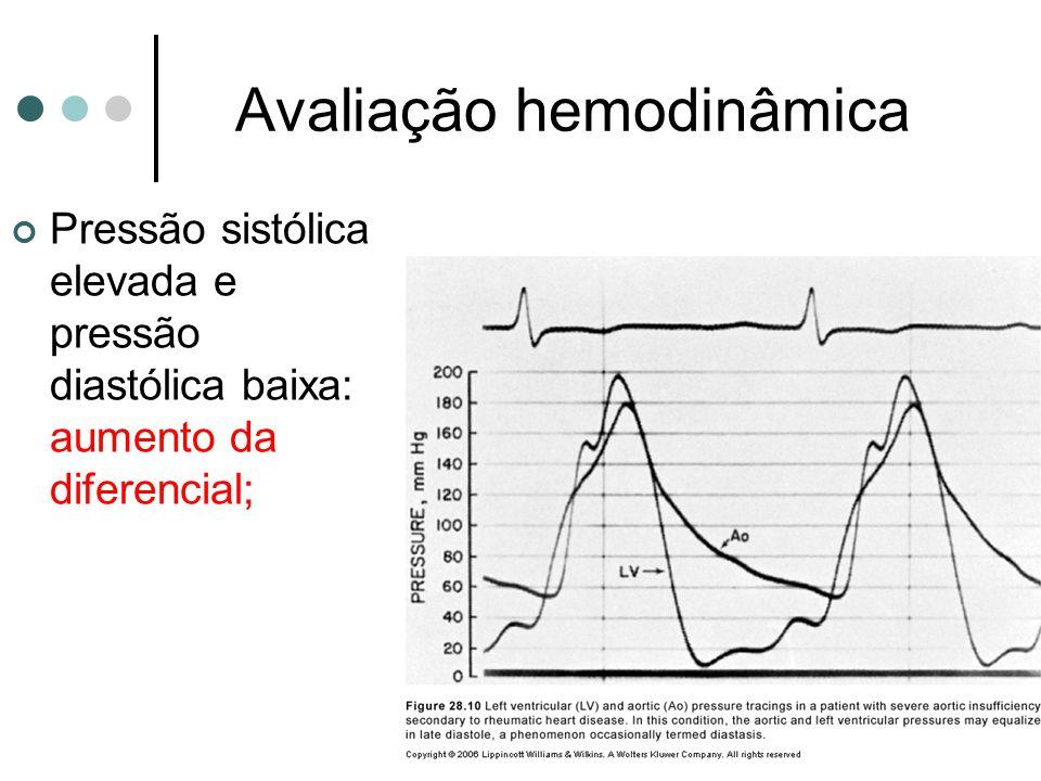 Avaliação hemodinâmica