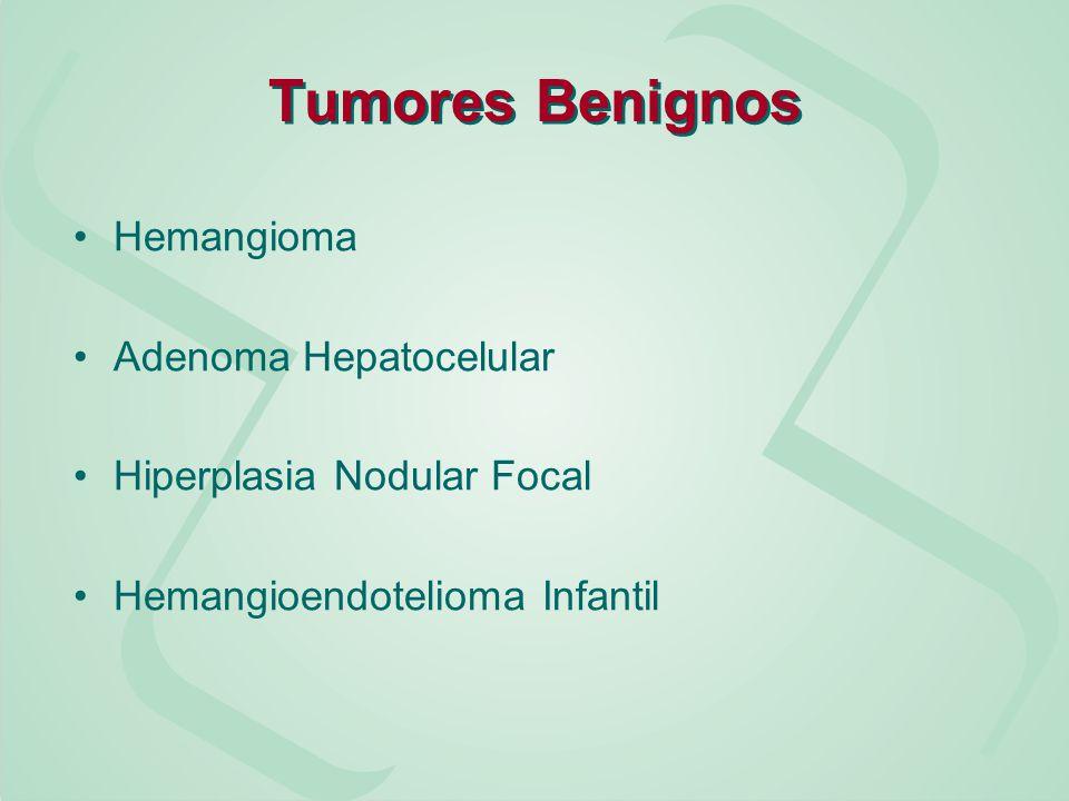 Tumores Benignos Hemangioma Adenoma Hepatocelular
