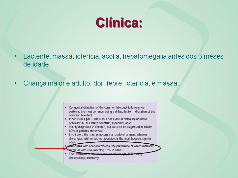 Clínica: Lactente: massa, icterícia, acolia, hepatomegalia antes dos 3 meses de idade.