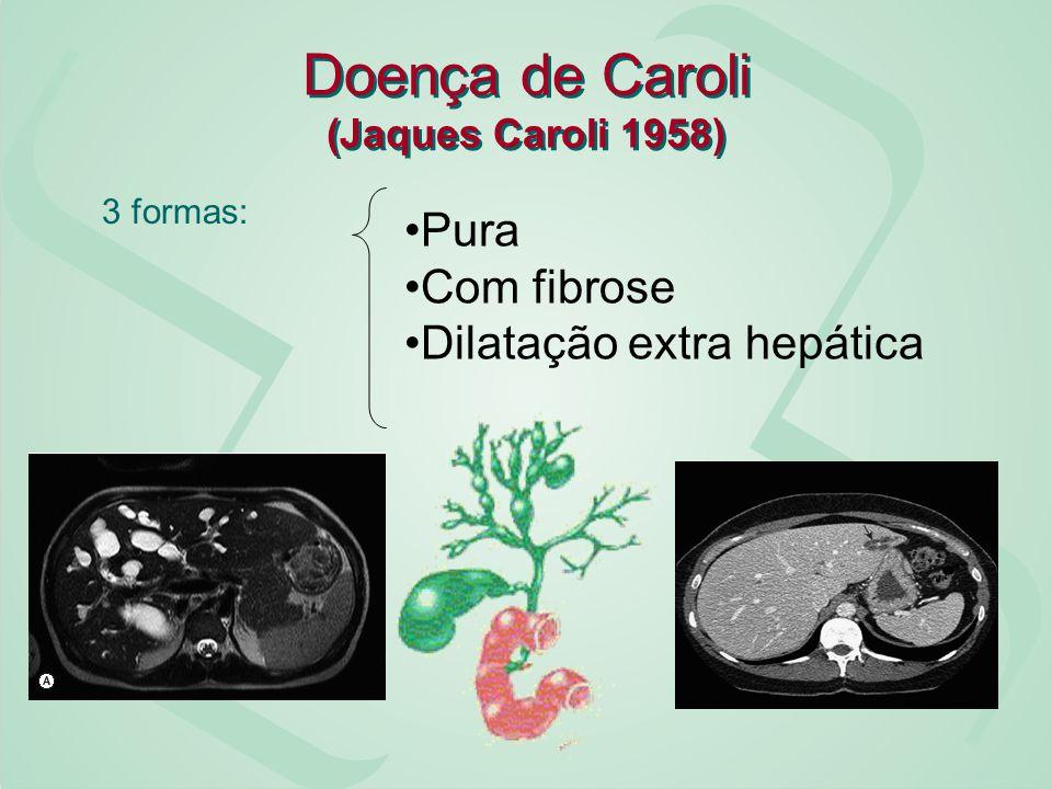Doença de Caroli (Jaques Caroli 1958)