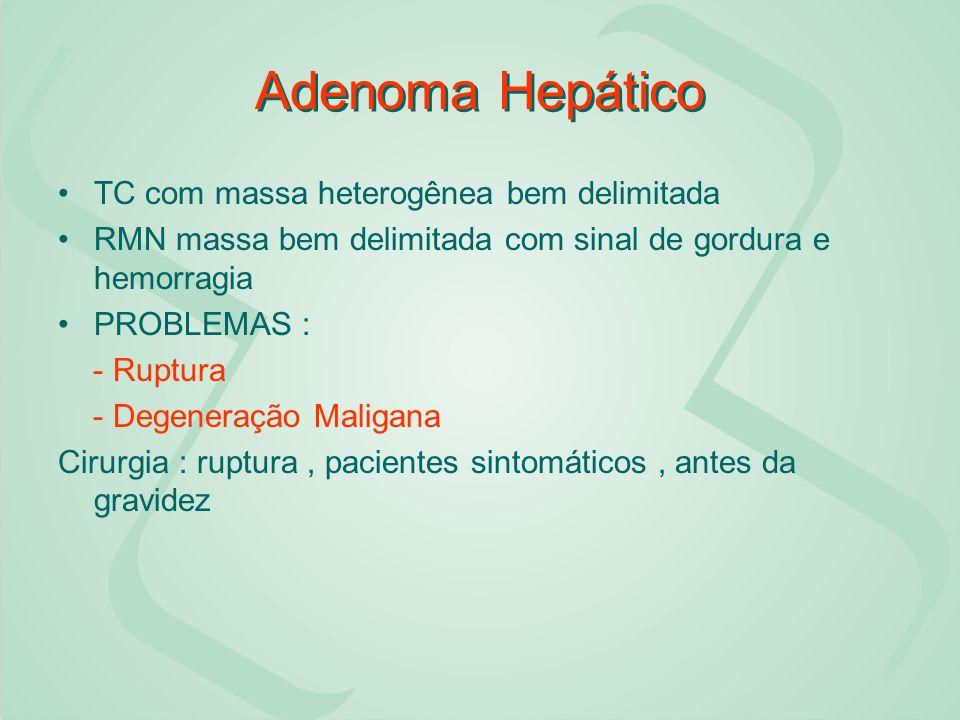 Adenoma Hepático TC com massa heterogênea bem delimitada