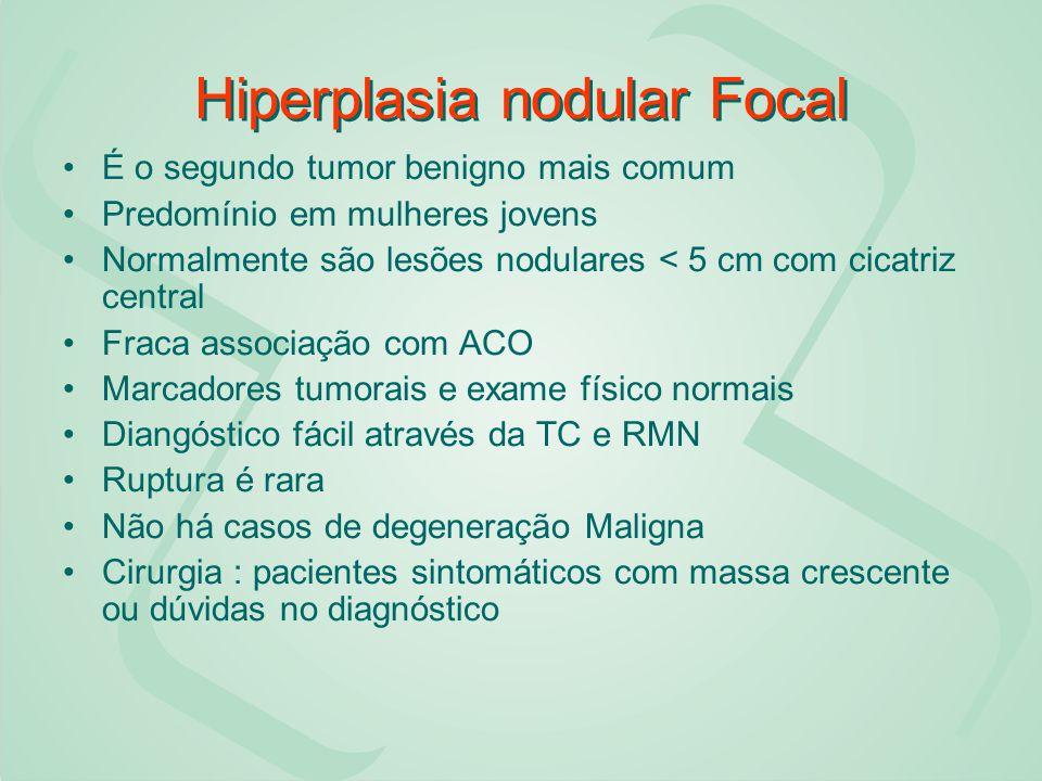 Hiperplasia nodular Focal