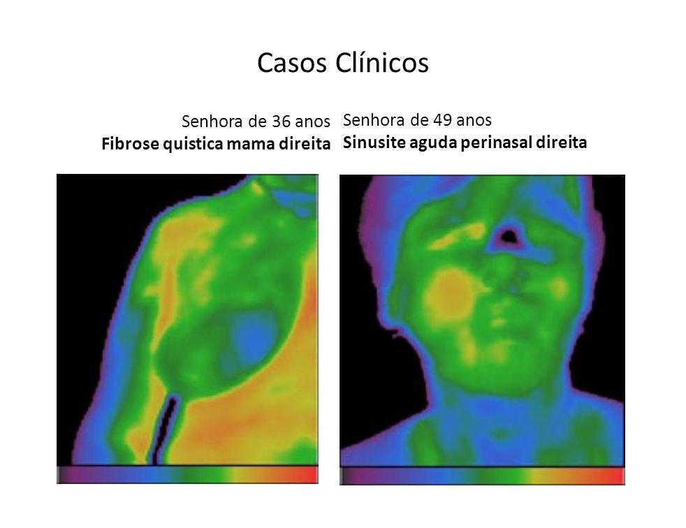 Senhora de 36 anos Fibrose quistica mama direita