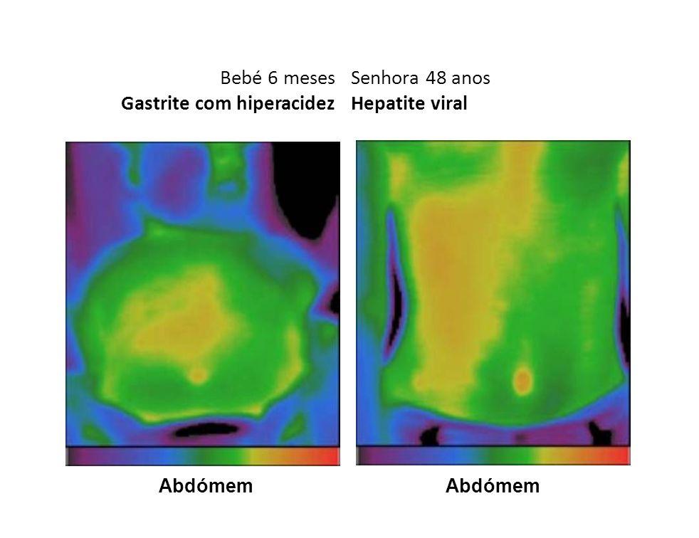 Bebé 6 meses Gastrite com hiperacidez