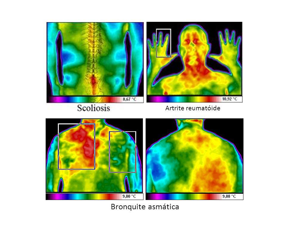 Artrite reumatóide Bronquite asmática