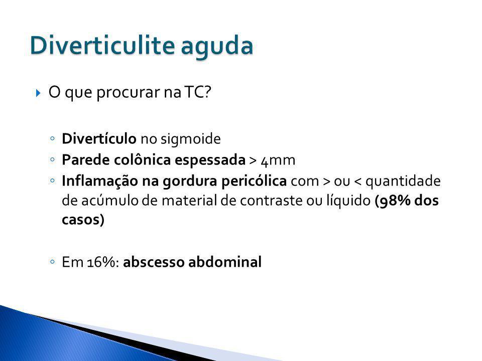 Diverticulite aguda O que procurar na TC Divertículo no sigmoide
